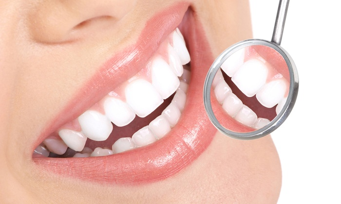 Scaling - Teeth whitening